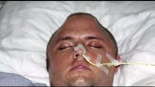 Cracked Skull Skateboarding Accident Part 2 - Bizarre ER