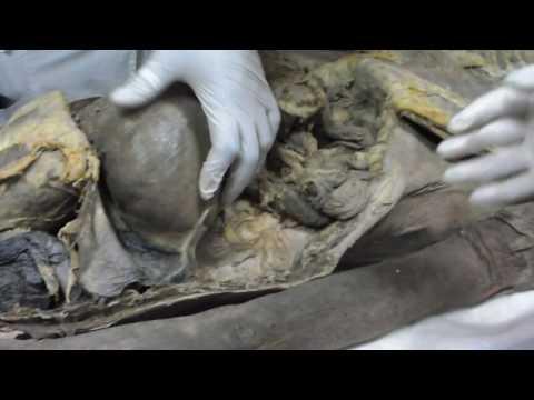 Анатомия человека. Спланхнология. Ход брющины.