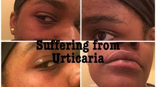 All About My Skin | Suffering from Urticaria & Perioral dermatitis| Acne & Dark Spot Treatment.