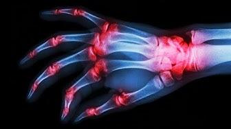 Gelenkschmerzen scharf wie tausend Nadelstiche: Gicht erkennen und behandeln