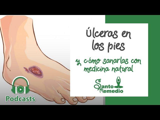 Úlceras en los pies y como sanarlas con medicina natural - Santo Remedio Panamá.