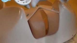 Методика введения пессария  (кольцо) маточного