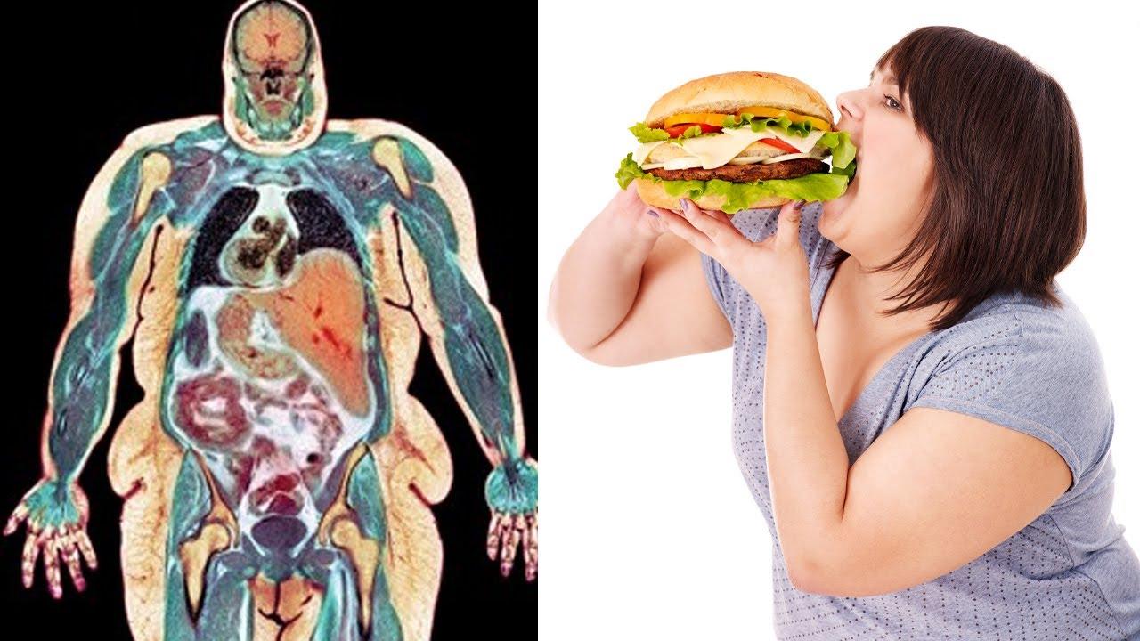 Los 13 Alimentos que Dañan el Cuerpo y que consumimos casi todos los días