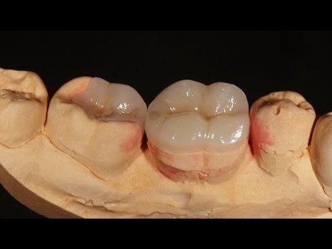 Микропротезирование боковых зубов керамическими вкладками Emax (Имакс). Emax inlay onlay..