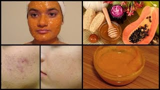 How to get rid of DARK SPOTS, PIGMENTATIONS & ACNE SCARS | Papaya Face Mask