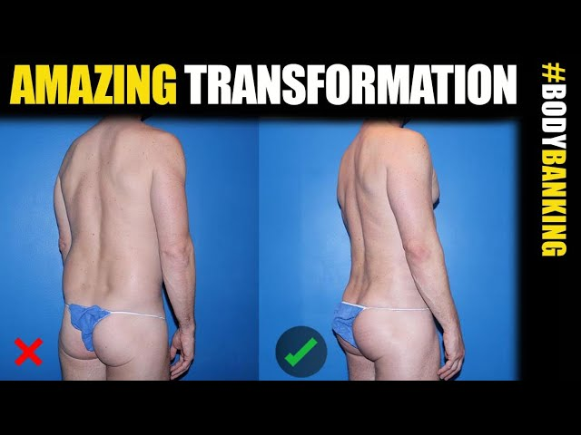 Male Butt Lift with BodyBanking in NYC, Chicago and Los Angeles #MalePlasticSurgery #BodyBanking