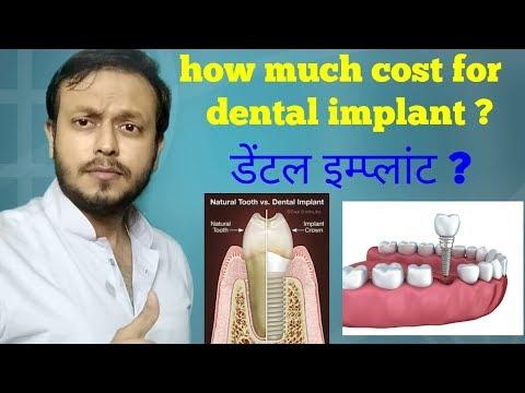 what-is-dental-implant-and-cost-in-hindi-,-डेंटल-इम्प्लांट-क्या-है-?-#drvaibhavhtiwari