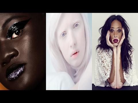 6 modelle con una pelle che vi sorprenderà. la bellezza della diversità