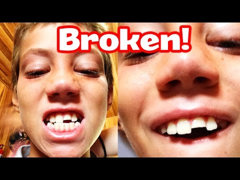 I BROKE MY TOOTH!