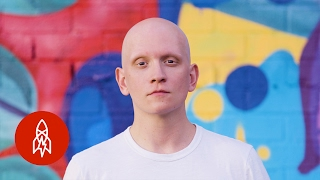 Losing His Hair Made Him a Better Actor