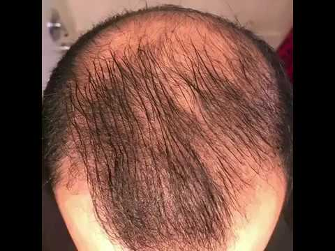 8 months usingminoxidil - Rogaine 5% Before & After results