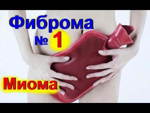 Миома матки -лечение миомы фибромы народными средствами. Женское здоровье № 1
