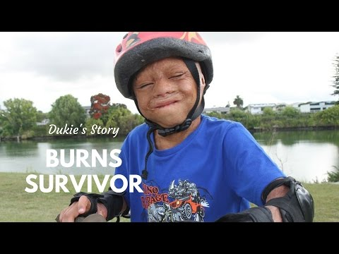 Burns Survivor: Dukie's Story