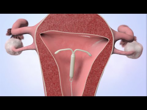 Patient Education Video: Intrauterine Device (IUD)