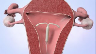 Repeat youtube video Patient Education Video: Intrauterine Device (IUD)