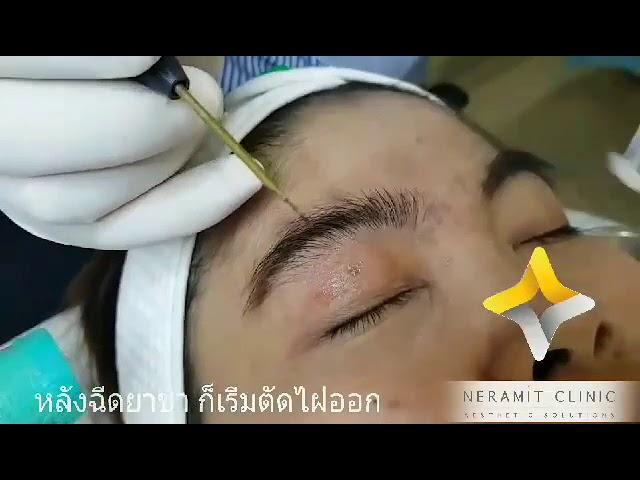ตัดไฝบนเปลือกตา @หมอปุ๊ Neramit Clinic