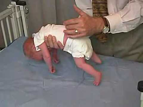 Neurology Exam Newborn Abnormal Positions Ventral