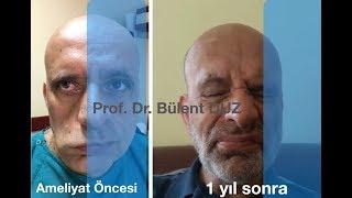 Yüz felci ameliyatı - Prof Dr. Bülent DÜZ