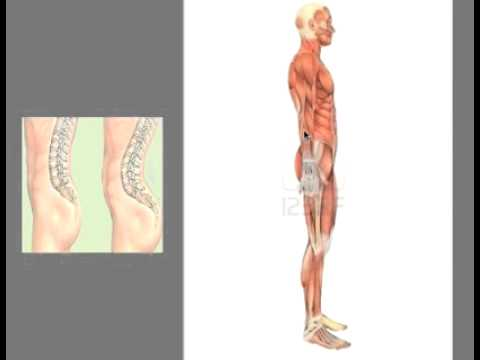 What Is Lordosis   YouTube