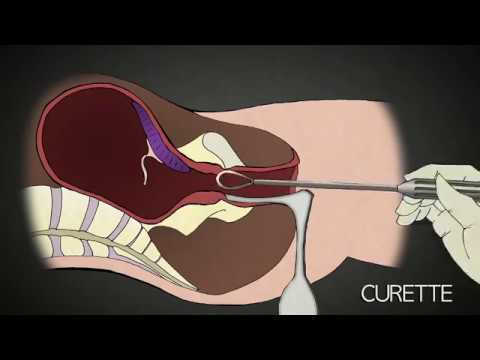 2nd Trimester Abortion Procedure | Dr. Anthony Levatino - Fo