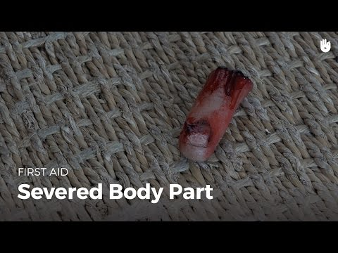 First Aid: Severed Body Part | First Aid