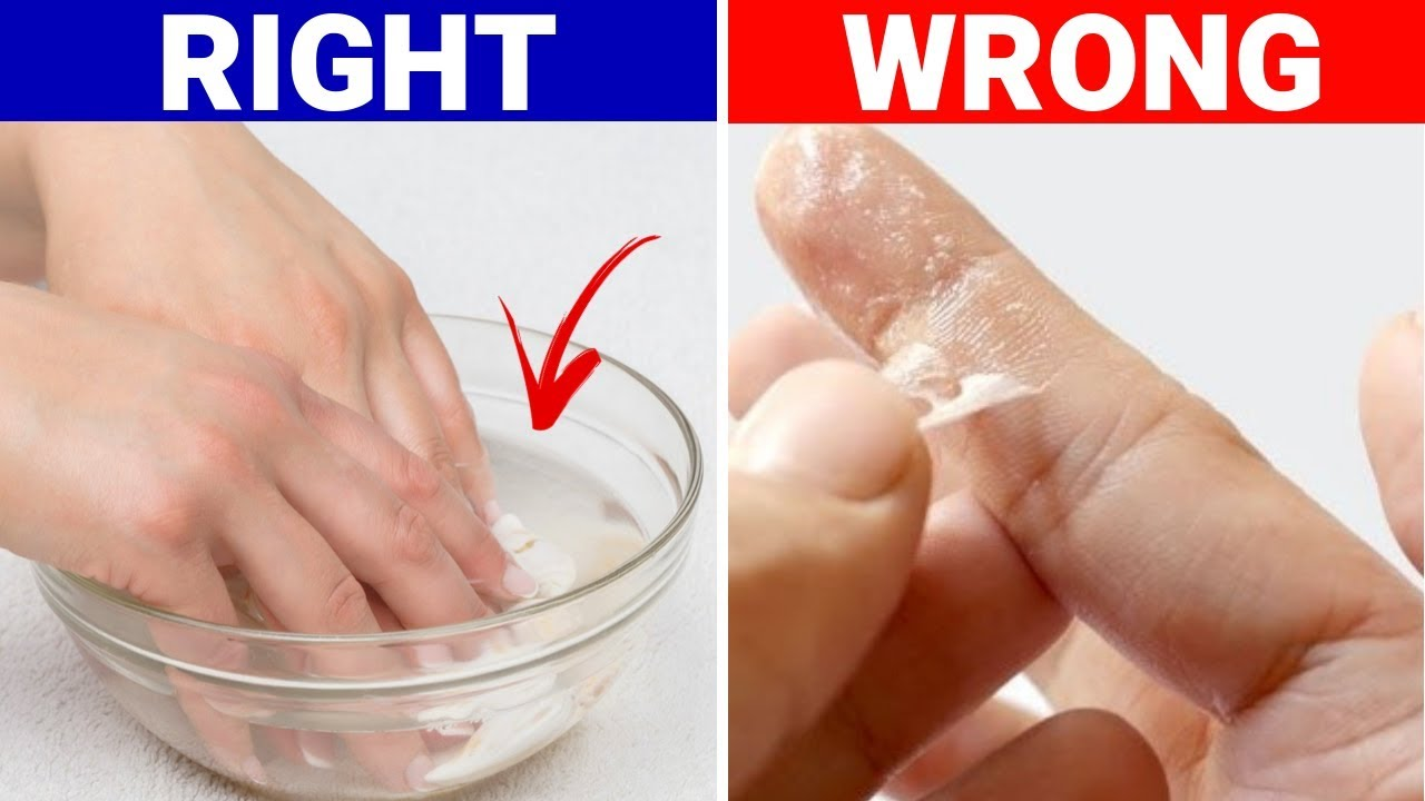 Remove super glue from hand skin without acetone or nail polish remover – House keeper