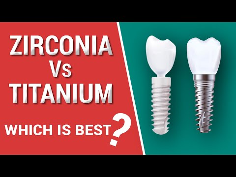 Zirconia Vs. Titanium Dental Implants