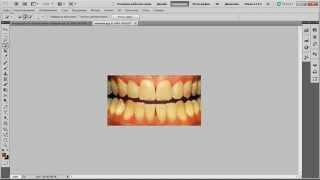 Отбеливание зубов без блендамеда видео урок онлайн