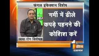 Skin Diseases! Make sure you havent Fungal Infection II Health First    First India News