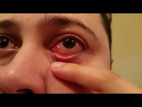 Eyeball Blister – Allergic Reaction