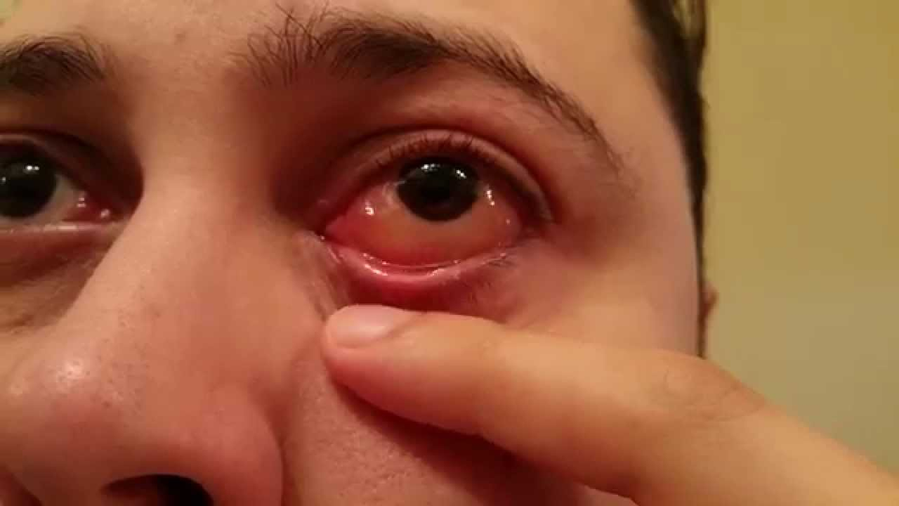 Image Result For Allergic To Cat Symptoms