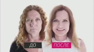 Стоматолог Олег Конников  На 10 лет моложе  2 07 16