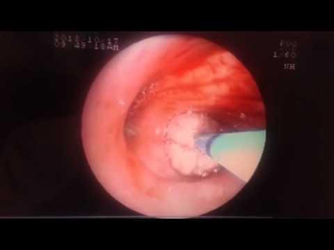 Cryobiopsy