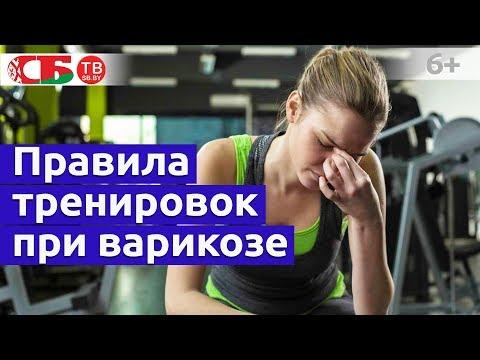 Как правильно тренироваться при варикозе