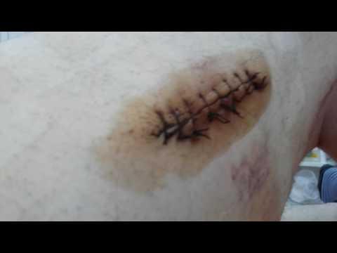 Как накладывается повязка на раны при проникающих ранениях живота