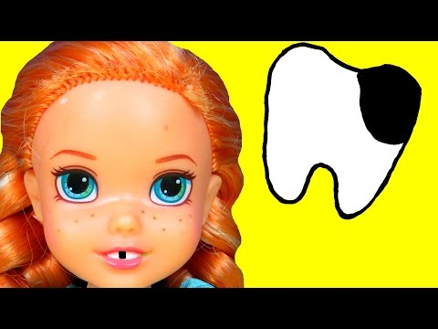 DENTIST! Sugar Bugs ! ANNA toddler loses a TOOTH - Afraid of Dentist - Little ELSA is there too