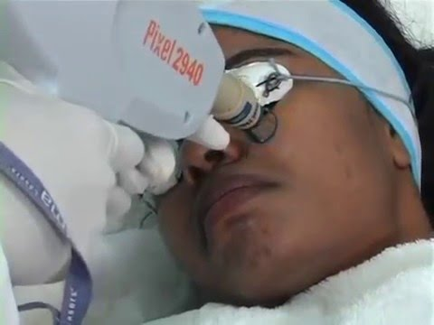 Acne (pimple)Scar Removal by Pixel Treatment at Oliva Skin Clinic, Hyderabad