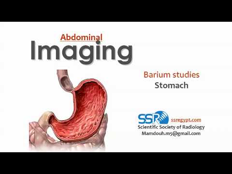 Radiology of Stomach (Barium Meal) - Prof. Dr. Mamdouh Mahfouz(Cairo 2018)