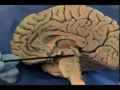 UIC Neuroanatomy: Midsagittal Section of the Human Brain, Conwell Anderson, Ph.D.