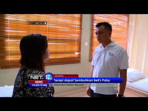Pengobatan Penyakit Saraf Wajah Bell's Palsy - NET12