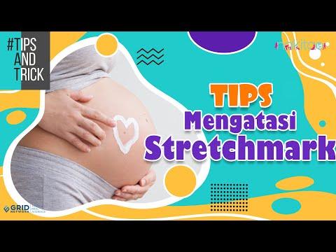KESEL SAMA STRETCH MARK BANDEL? Stretch mark terbentuk karena elastisitas kulit yang buruk. Sehingga.