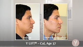 Y LIFT ® 2013 - Cal | Instant, Non Surgical Facelift