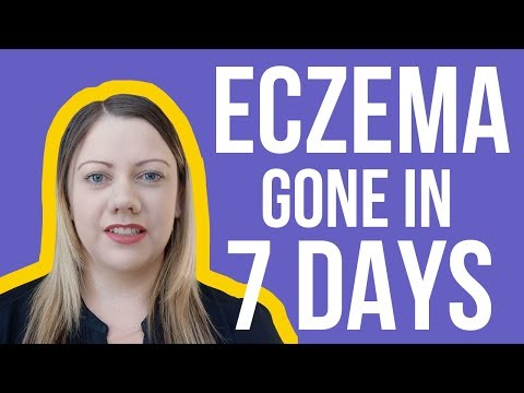 Eczema Skin Rash Cure & Treatment | Skin Rashes That Itch Gone In 7 Days 100% Natural