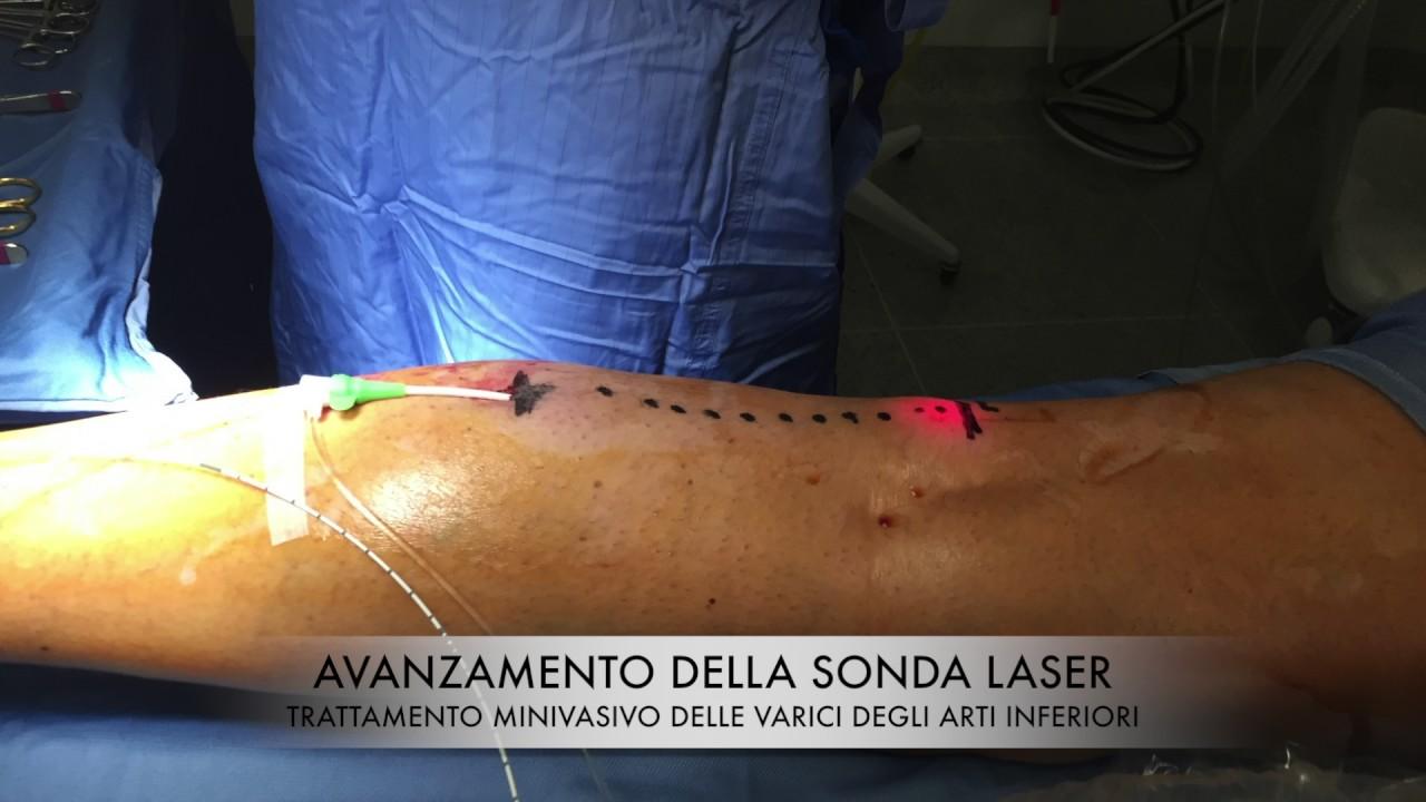 Termoablazione Laser Vena Piccola Safena Small Saphenous Vein