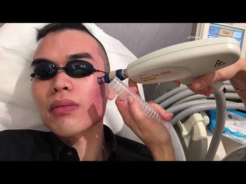 Pixel Laser Treatment | Before & After | Updates