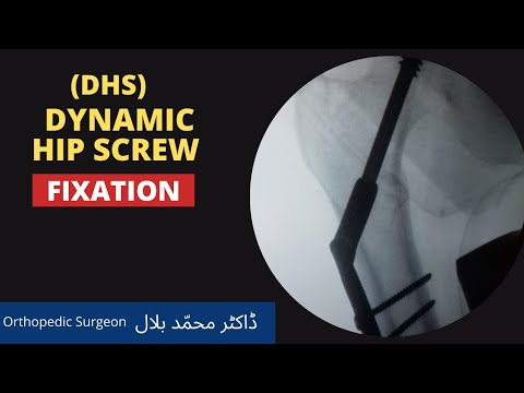 Hip DHS (Dynamic Hip Screw) Fixation in Lahore Pakistan Dr. Muhammad Bilal Best Orthopedic Surgeon.
