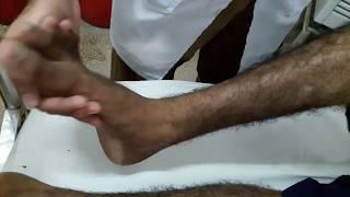 Ankle Clonus Examination || Ankle Clonus Test || Motor Reflex