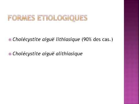 hqdefault - Cholécystite aiguë