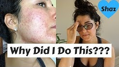 hqdefault - How To Reduce Pimples After Waxing Face