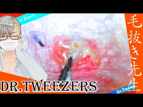 317 [200x Zoom] What appears from here Dr. tweezers 毛抜き先生の角栓や毛根